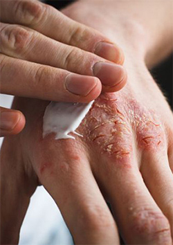 Infection eczema