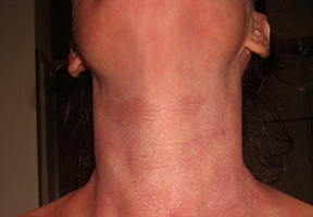 Red Skin Syndrome - Eczema Association of Australasia Inc
