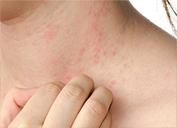 Eczema cure a step closer as scientists discover what triggers painful skin condition