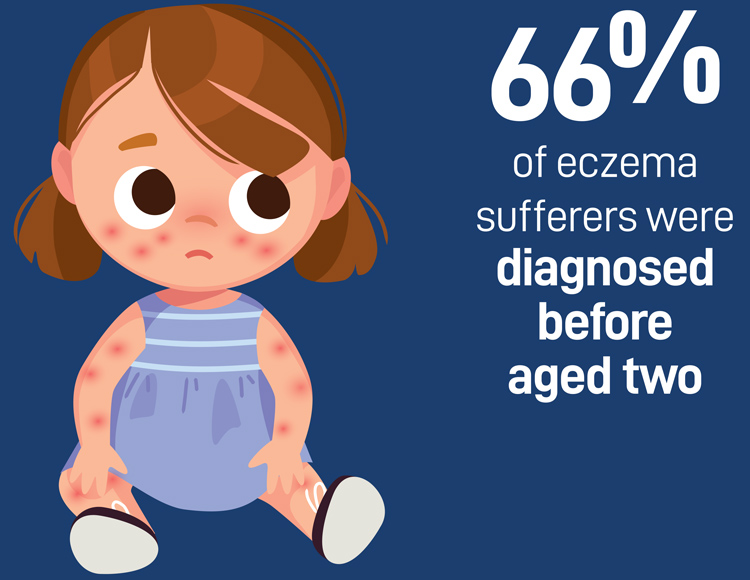 eczema suffers were diagnosed before aged two