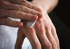 Infections and Eczema