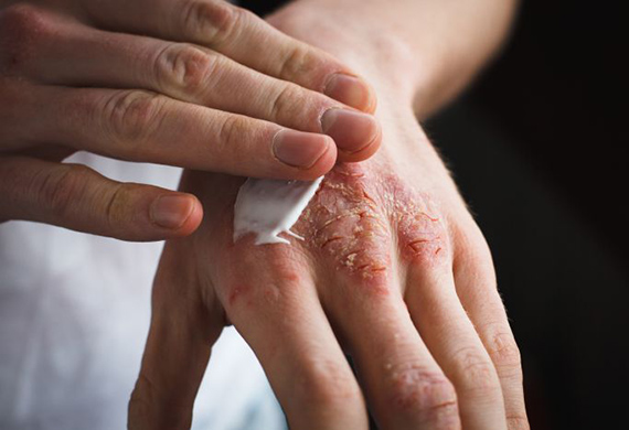 Infection and Eczema