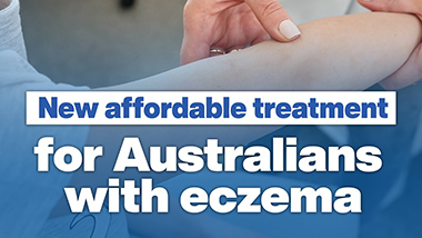 New affordable treatment for eczema