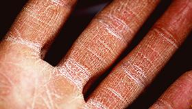 Cracking Skin
