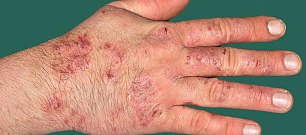 Hand Eczema Core Outcome Set