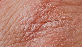 Eczema is not just skin deep