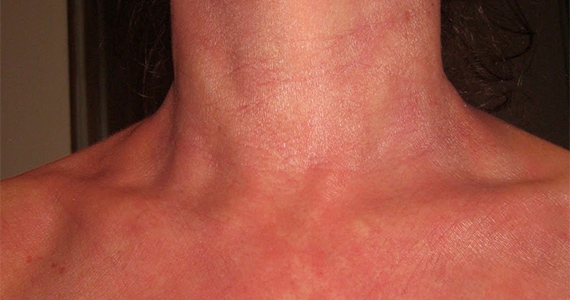 Red Skin Syndrome is not eczema