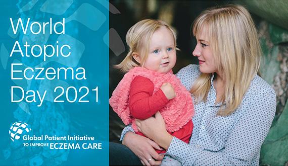 World Atopic Eczema Day 2021